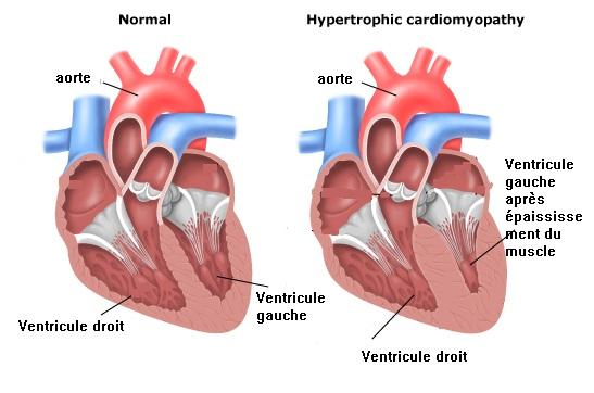 Cas de HCM / cardiomyopathie hypertrophique